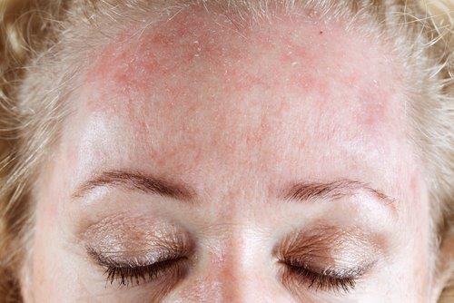 Dry & Dehydrated Skin